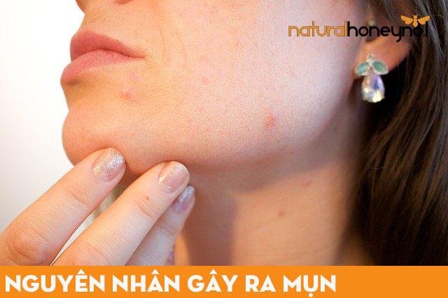 Làn da bị mụn do không chăm soc đúng cách